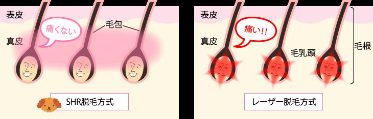 SHR脱毛のイメージ