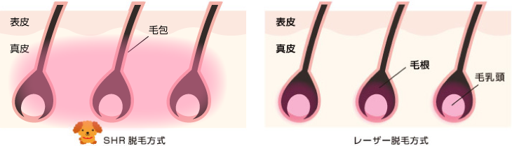 SHR脱毛の仕組み