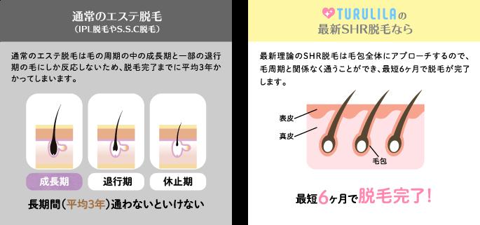 ツルリラ 毛周期に関係なく脱毛できる