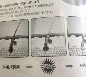 ケノン 使用頻度 脱毛間隔